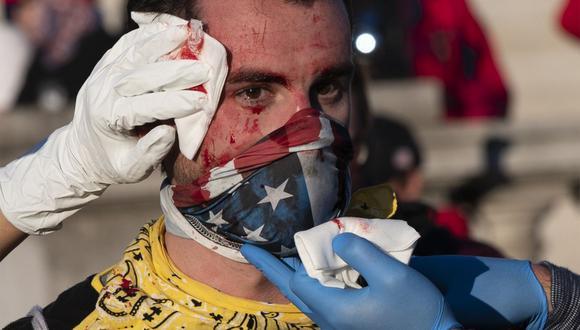 Un partidario del presidente de Estados Unidos, Donald Trump, recibe ayuda después de ser agredido por un desconocido en Washington, DC, durante una manifestación el 14 de noviembre de 2020. (Foto de ANDREW CABALLERO-REYNOLDS / AFP).