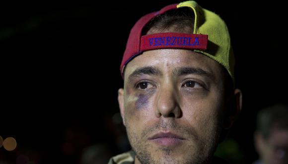 Jesús Medina Ezaine en una imagen del 7 de noviembre del, 2017, tras ser detenido por primera vez. (AP Photo/Ariana Cubillos).
