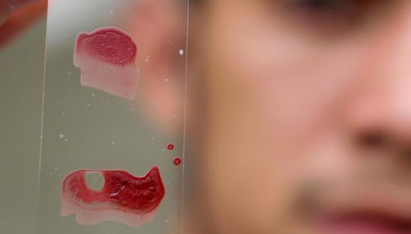 Brasileños descubren molécula útil para tratar el mal de Chagas