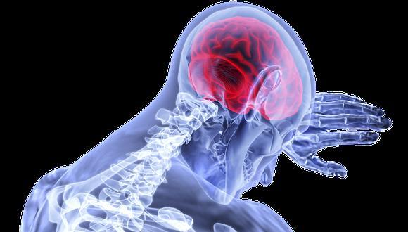El COVID-19 también puede causar problemas cerebrales. (Foto: Pixabay)