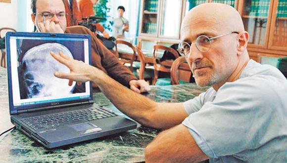 El cirujano de trasplante de cabeza pide ayuda a Bill Gates