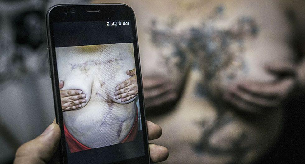 Tatuadora rusa convierte cicatrices en mariposas y flores - 7
