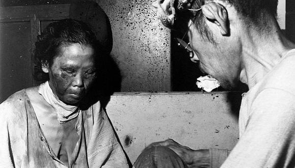 Muchos sobrevivientes sufrieron quemaduras y de los efectos de la radiación. (GETTY IMAGES).