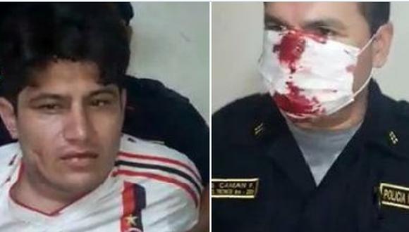 El agente policial resultó con lesiones en el rostro y con rastros de sangre en la mascarilla que usa como protección ante un posible contagio por coronavirus.  (Foto Mininter)