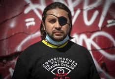 Un ojo de la cara, el alto precio de un año de estallido social en Chile   FOTOS