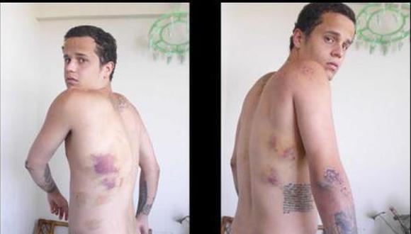 Venezuela: Joven violado con fusil narra su drama
