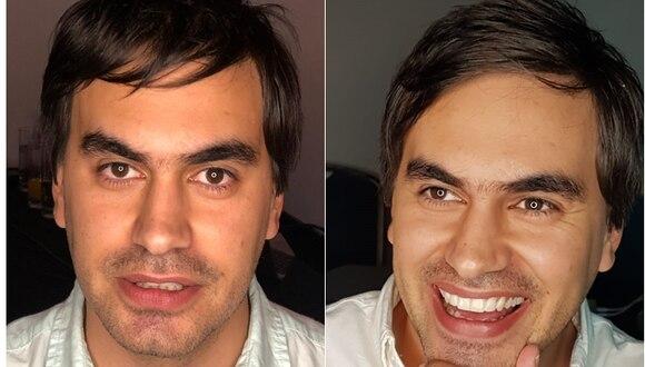 Esta técnica logra minimizar los riesgos de los tratamientos dentales en casi un 100%.