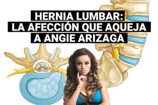 Qué es una hernia lumbar: la afección que preocupa a Angie Arizaga