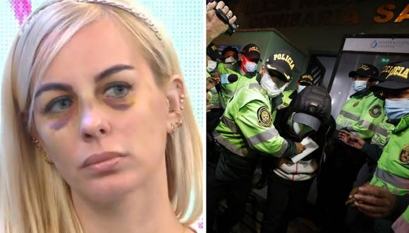 Dalia Durán habló sobre la prisión preventiva a John Kelvin. (Foto: Captura ATV / César Bueno @photo.gec)