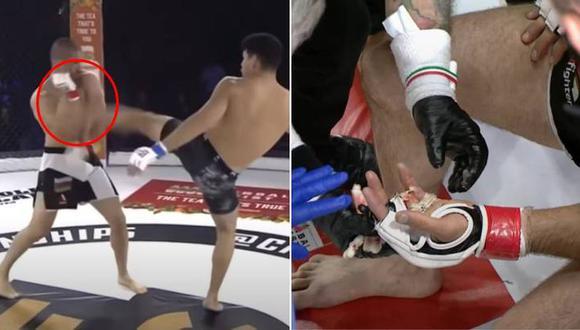 Luchador de MMA perdió un dedo en pleno combate y tuvo que ser operado de emergencia | VIDEO