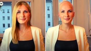 Mujer que perdió su cabello a los 18 años lucha contra el estereotipo de belleza