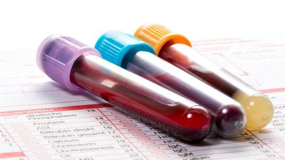 No todos los grupos sanguíneos son compatibles entre sí. (Foto: Getty)