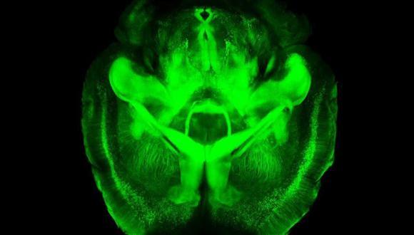 Un gen relaciona la materia gris cerebral con la inteligencia
