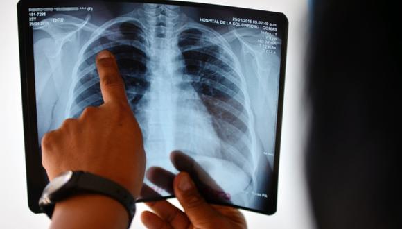 Tuberculosis es mayor causa de muertes entre seropositivos