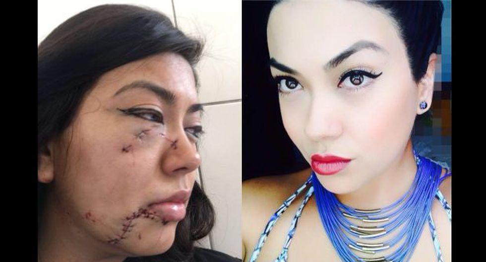 Chiclayo: se entregó hombre que desfiguró rostro de su pareja - 2