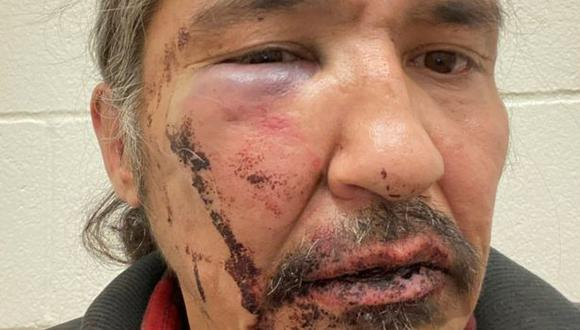 Allan Adam mostrando las heridas que asegura que le causaron agentes de la policía canadiense. (Foto: Reuters).