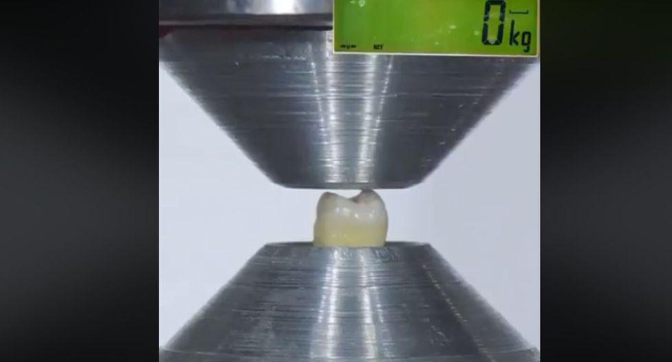 Los dientes naturales tienen una buena construcción. El esmalte, que es la capa externa de la corona del diente, está formado por la sustancia más dura del cuerpo humano. (Foto: Captura Facebook)