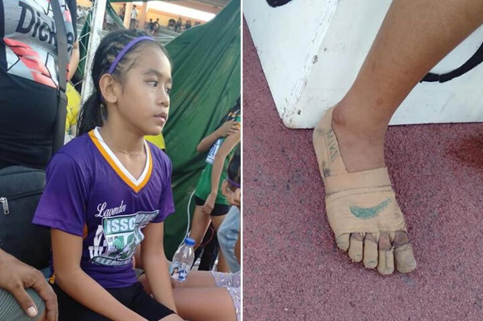 Una niña de 11 años se convirtió en una sensación del Internet al obtener tres medallas de oro en una competencia escolar de atletismo con sus pies envueltos en vendajes. (Foto: Predirick B. Valenzuela en Facebook)