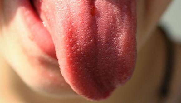 Según los expertos, los kilos de sobrepeso ocasionarían un aumento en el volumen de tu lengua y ese sería el motivo de que emitas los molestos ruidos. (Foto: Pixabay/ referencial)