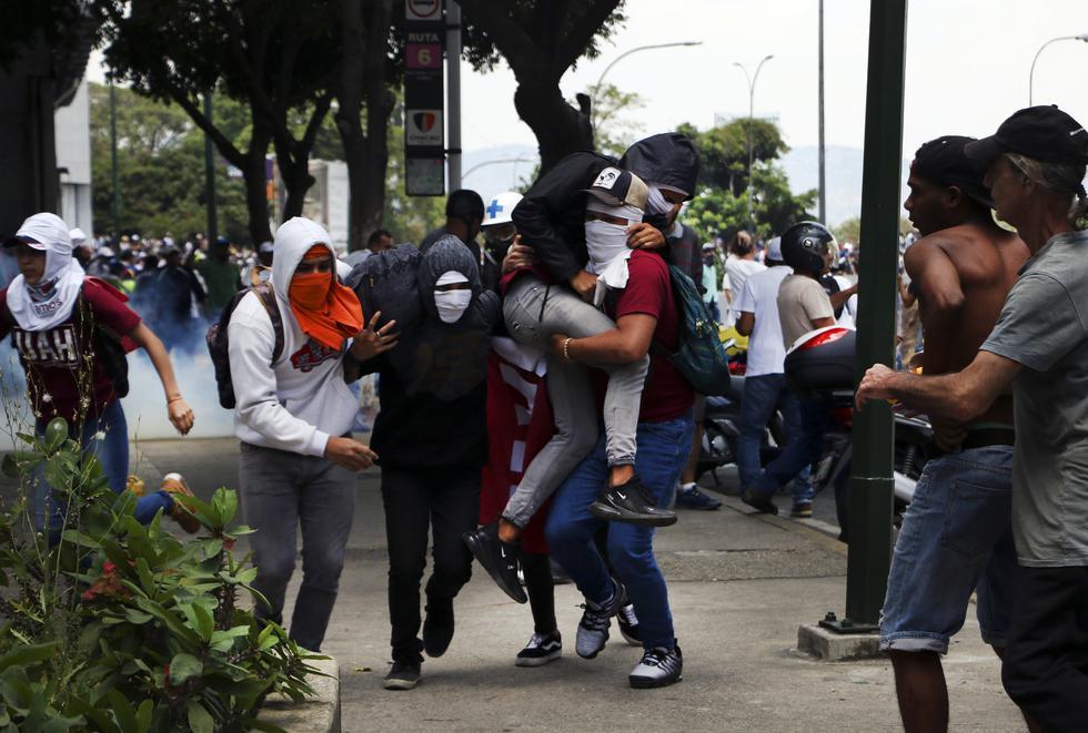 Venezuela | Las fotos de la violenta represión en el país. (Rolly Reyna / El Comercio)