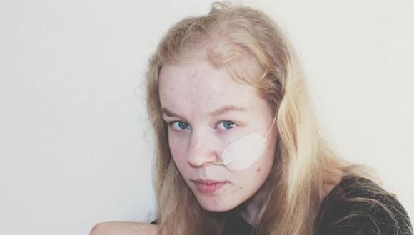 Noa Pothoven recibió la eutanasia. Falleció a los 17 años de edad en la habitación de su casa rodeada de su familia. (Foto: Instagram).