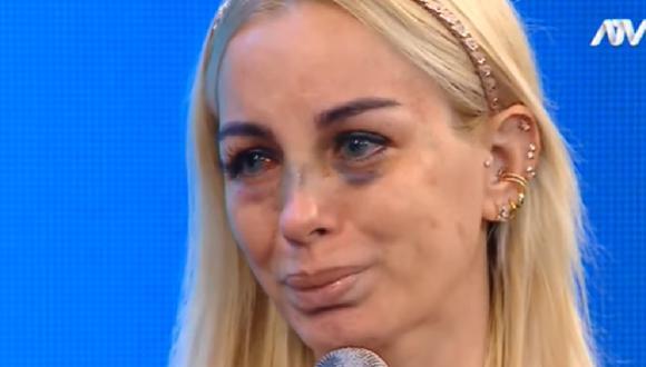Dalia Durán revela cómo reaccionó su familia tras conocer que fue agredida por John Kelvin. (Foto: captura de video).