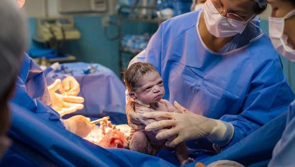 Isabela nació el pasado 13 de febrero y dos días después el fotógrafo encargado de inmortalizar el nacimiento compartió las fotos en sus redes sociales (Foto: Rodrigo Kunstmann)