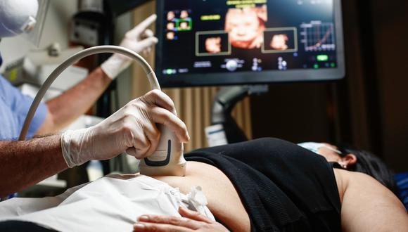 Los nuevos ecógrafos logran capturar más de mil imágenes por segundo. Todo ello hace más sencillo el estudio del corazón fetal. (Foto: Difusión)