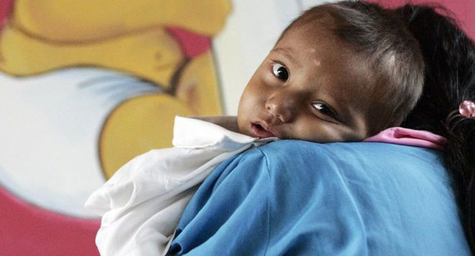 Guatemala lleva años ocupando el primer puesto de desnutrición crónica infantil en América Latina. (Foto: AFP)