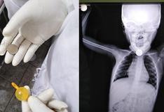 Piura: médicos salvan a niña de 3 años con COVID-19 que se tragó una moneda