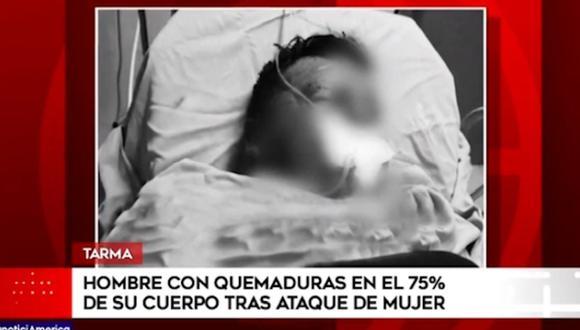 Debido a las graves lesiones, se dispuso el traslado del hombre al Hospital Arzobispo Loayza en Lima, donde fue ingresado a la sala de cuidados intensivos. (Foto: Captura América Noticias)