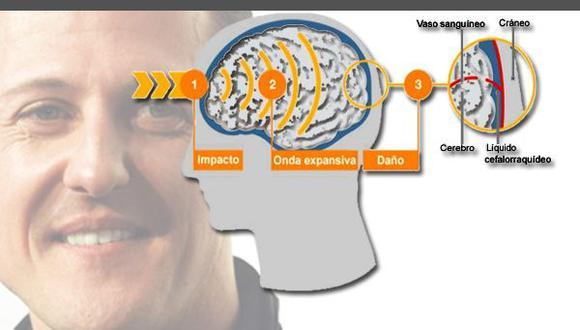 Schumacher en coma: ¿Qué tan peligroso es un golpe en la cabeza?