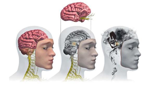 Así es el cerebro del corrupto