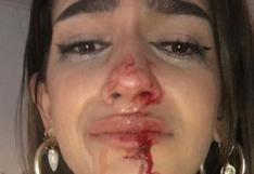 """""""No me merezco esto"""": joven transexual denuncia agresiones en su contra en España"""