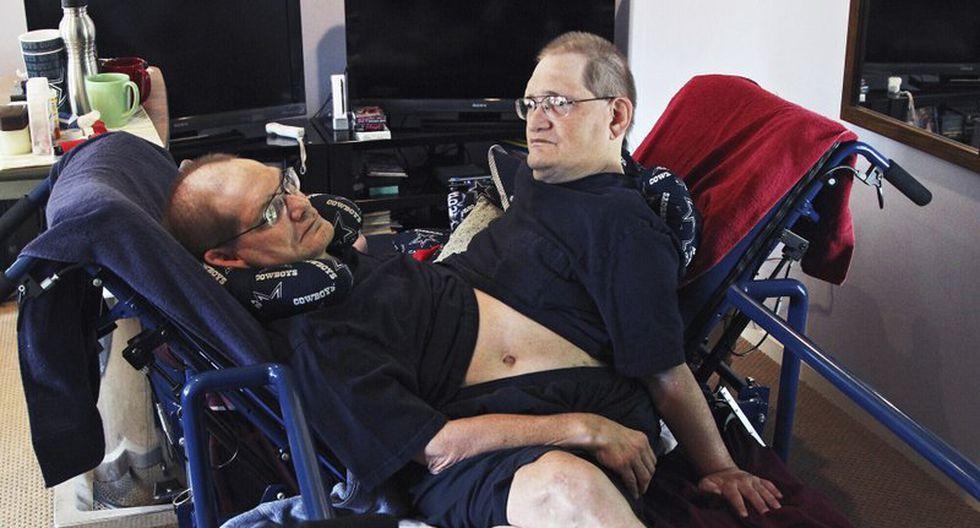 Ronnie y Donnie Galyon, de Beavercreek (Ohio), nacieron unidos por el abdomen el 28 de octubre de 1951. (Foto: Drew Simon/Dayton Daily News via AP, archivo)