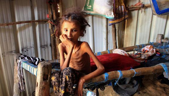 La niña yemení de 10 años llamada Ahmadia Abdo, que pesa diez kilos debido a la desnutrición aguda, se sienta en su cama en un campamento para desplazados internos en la gobernación norteña de Hajjah, el 23 de enero de 2021. (Foto de ESSA AHMED / AFP).