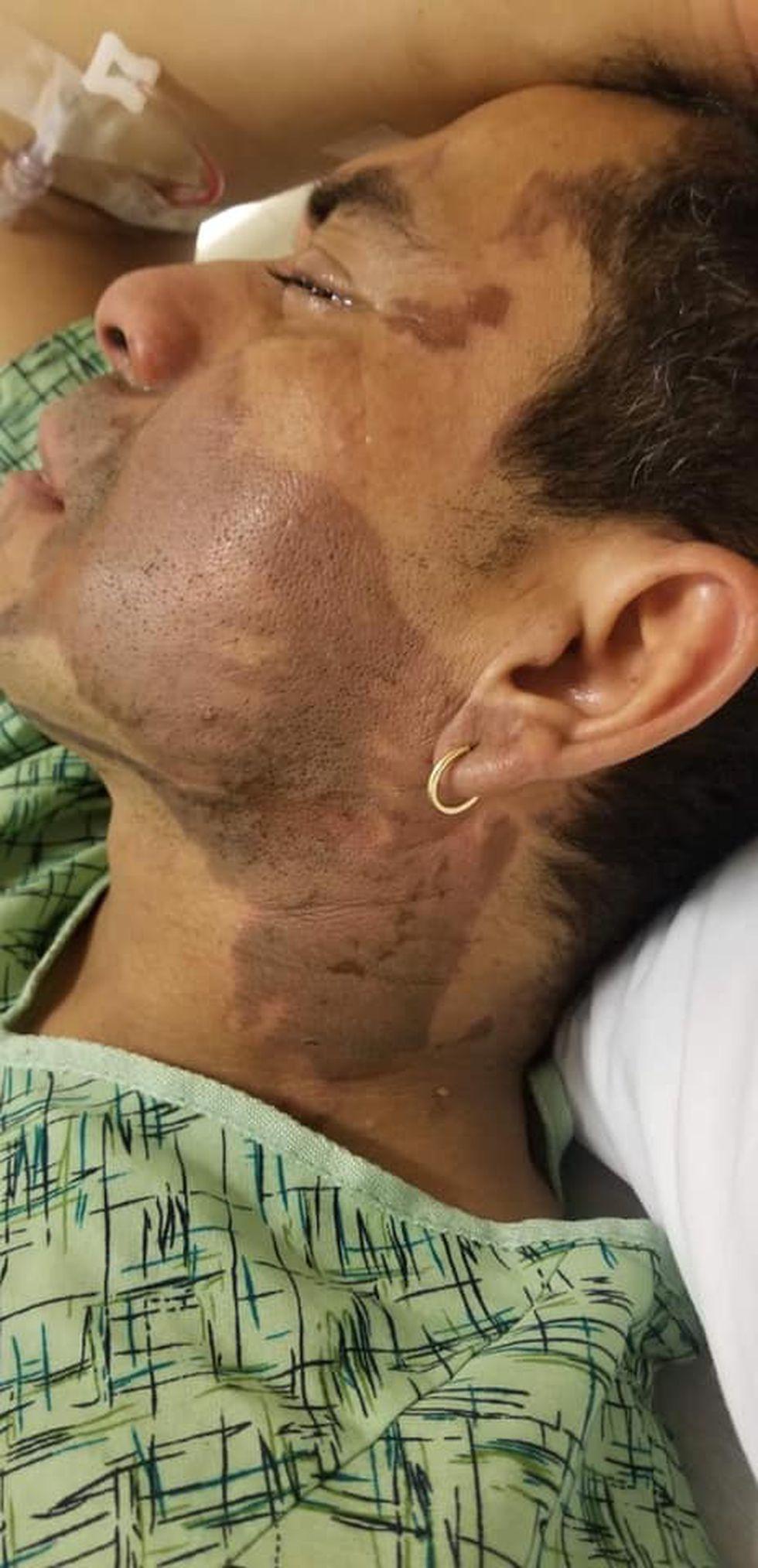 Así quedo el rostro del hombre tras el ataque con ácido de batería. (Facebook: Sivily Maritza Paz)